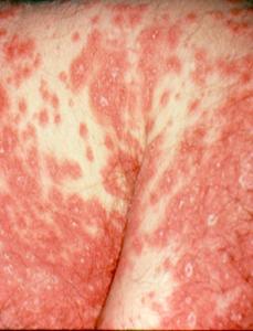 erythrodermic