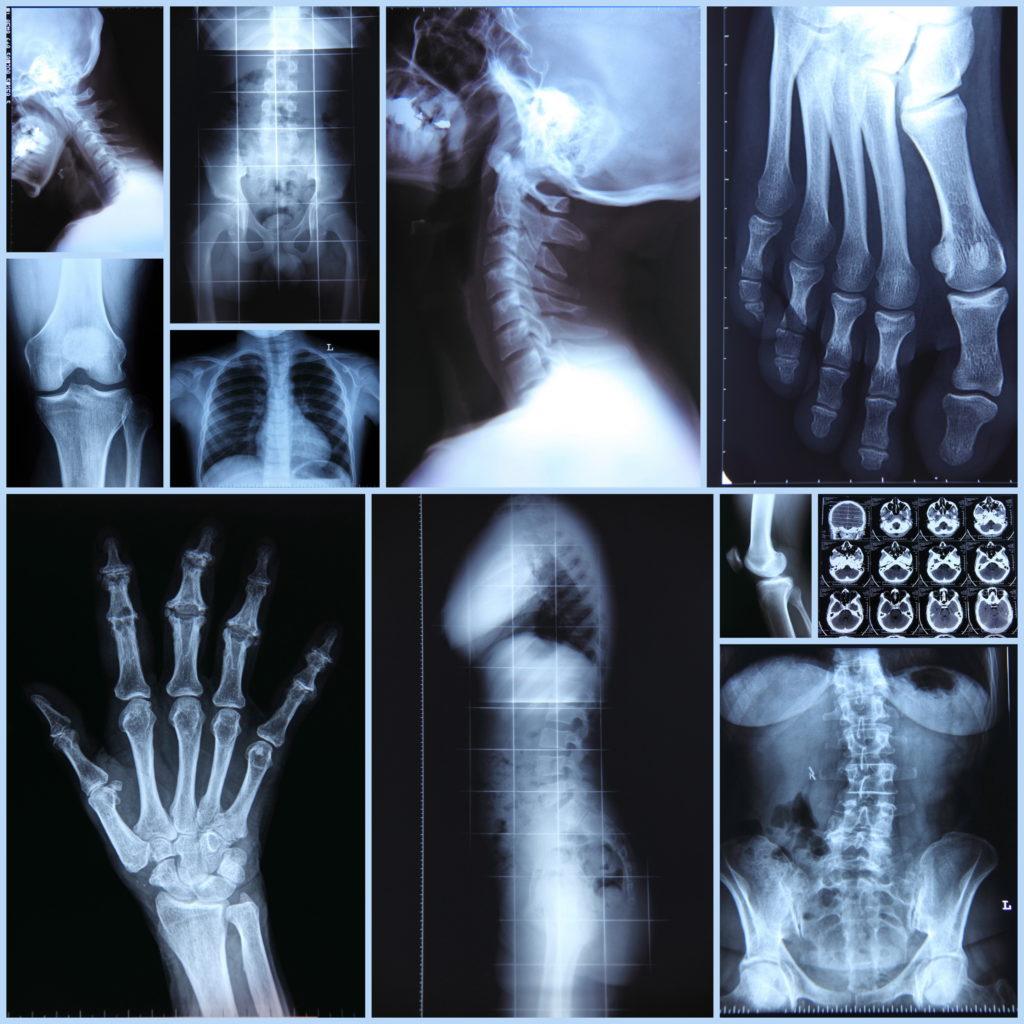Схема описания рентгенограммы костей