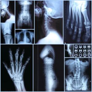 Xray collage of hands, torso, neck, etc