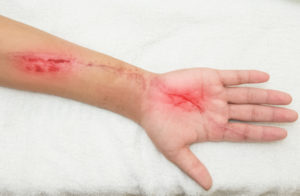 Arm with nasty looking, but not too deep, lacerations down the hand and forearm.
